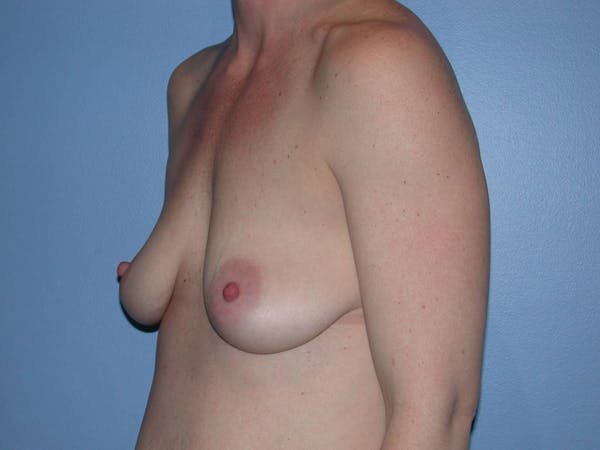 Breast Augmentation Gallery - Patient 4757611 - Image 7