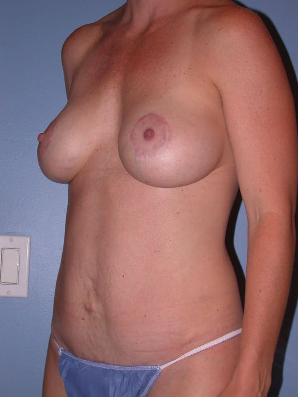 Breast Augmentation Gallery - Patient 4757611 - Image 8