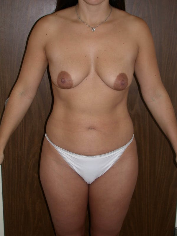 Breast Augmentation Gallery - Patient 4757630 - Image 1