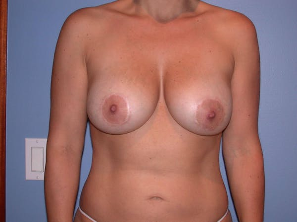 Breast Augmentation Gallery - Patient 4757630 - Image 2