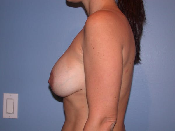 Breast Augmentation Gallery - Patient 4757630 - Image 4