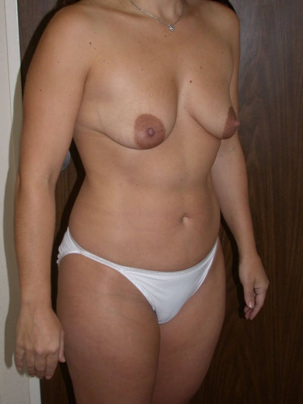 Breast Augmentation Gallery - Patient 4757630 - Image 5