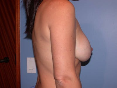 Breast Augmentation Gallery - Patient 4757630 - Image 6
