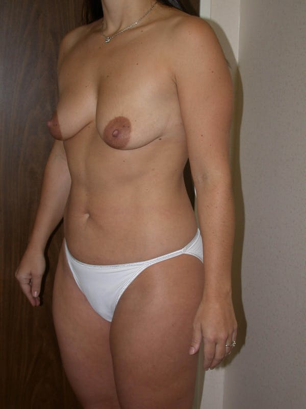 Breast Augmentation Gallery - Patient 4757630 - Image 7