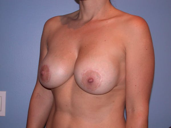 Breast Augmentation Gallery - Patient 4757630 - Image 8