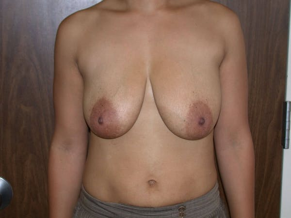 Breast Augmentation Gallery - Patient 4757636 - Image 1