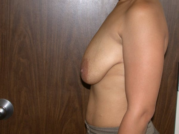 Breast Augmentation Gallery - Patient 4757636 - Image 3