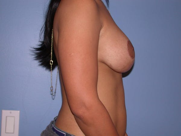 Breast Augmentation Gallery - Patient 4757636 - Image 6