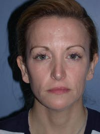 Brow Lift Gallery - Patient 5900586 - Image 1