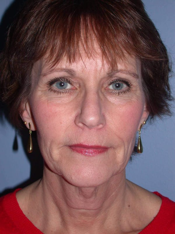 Brow Lift Gallery - Patient 5900587 - Image 1