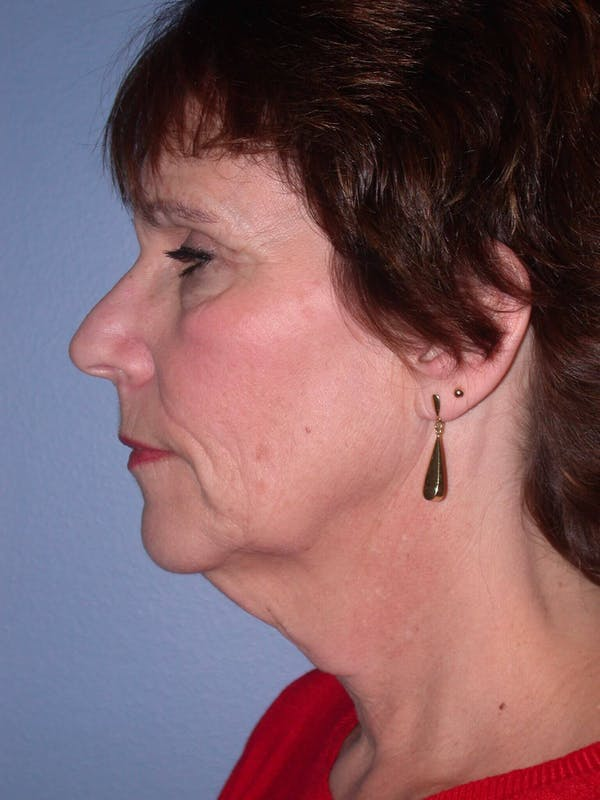 Brow Lift Gallery - Patient 5900587 - Image 3