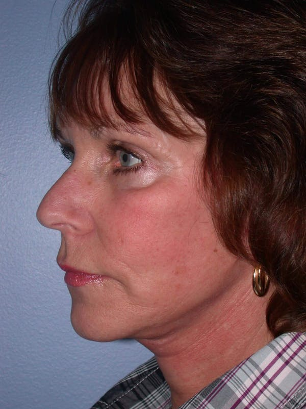 Brow Lift Gallery - Patient 5900587 - Image 4