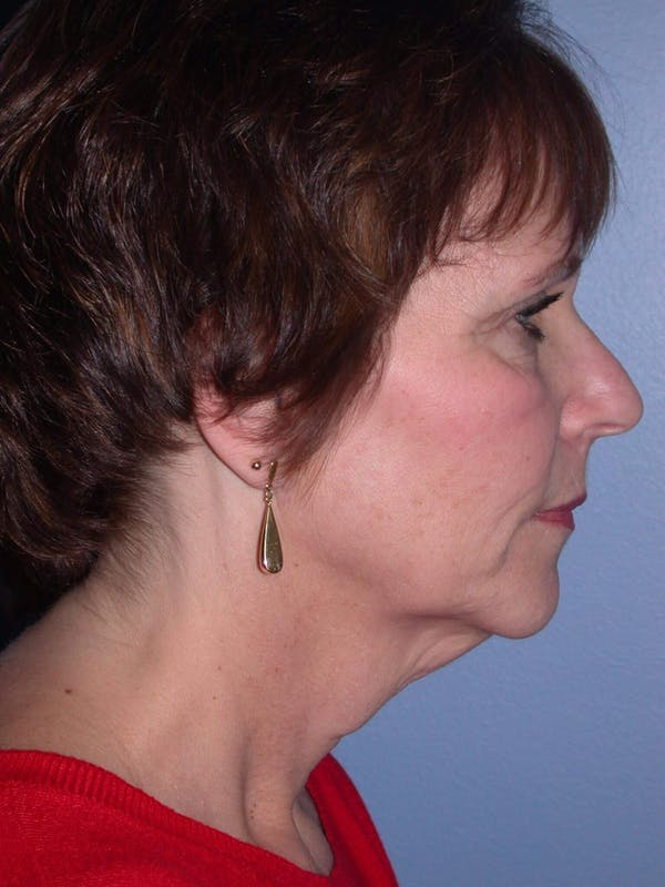 Brow Lift Gallery - Patient 5900587 - Image 5