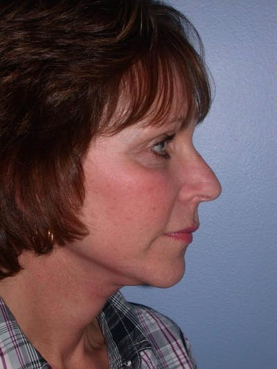 Brow Lift Gallery - Patient 5900587 - Image 6