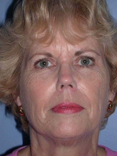 Brow Lift Gallery - Patient 5900588 - Image 1