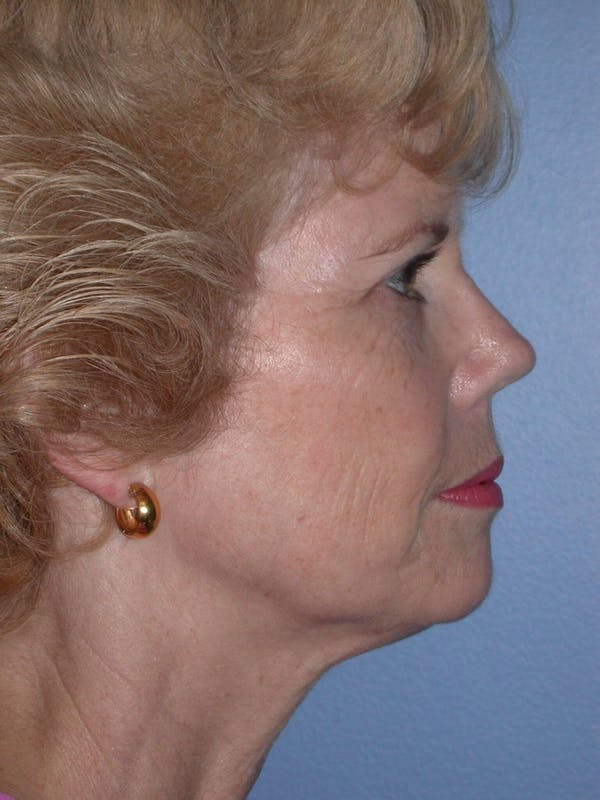 Brow Lift Gallery - Patient 5900588 - Image 5