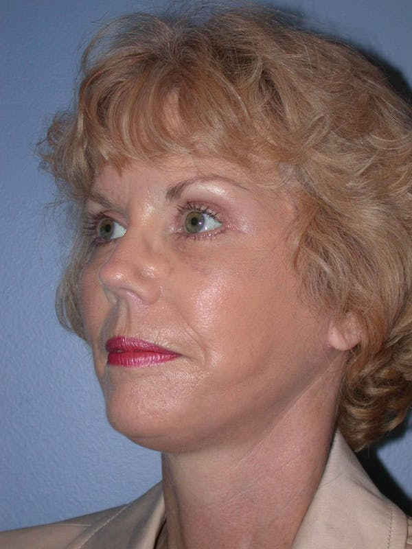 Brow Lift Gallery - Patient 5900588 - Image 8
