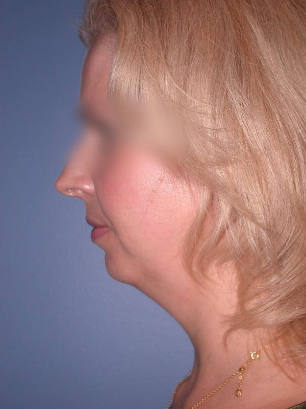 Chin Augmentation Gallery - Patient 5900638 - Image 1