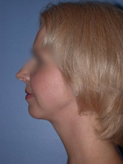 Chin Augmentation Gallery - Patient 5900638 - Image 2