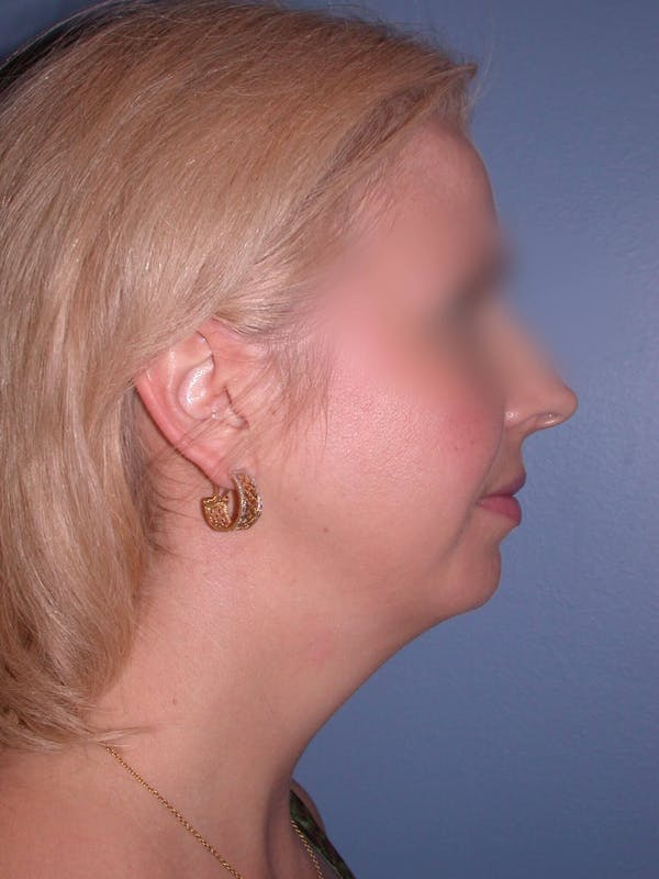 Chin Augmentation Gallery - Patient 5900638 - Image 3