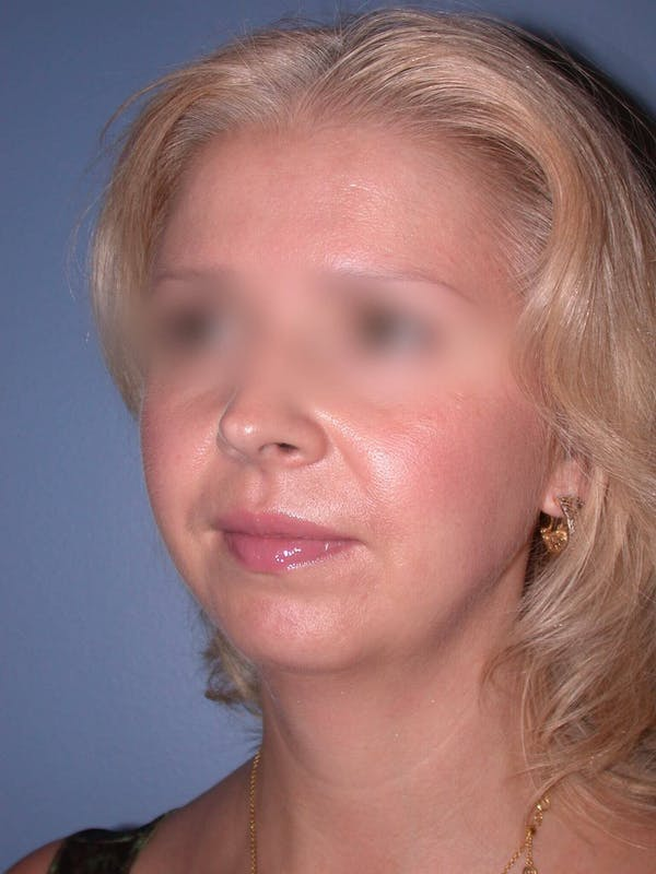 Chin Augmentation Gallery - Patient 5900638 - Image 5