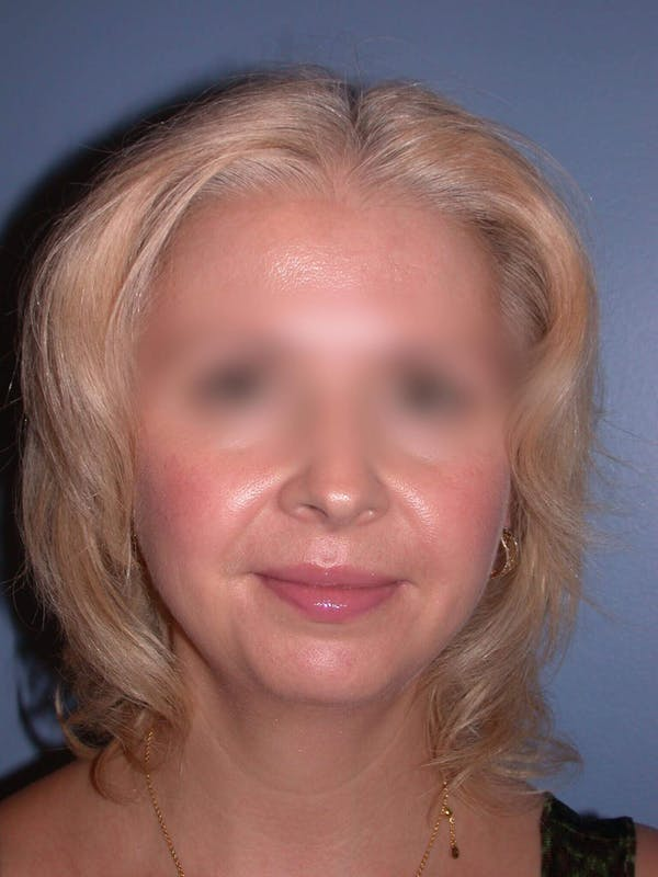 Chin Augmentation Gallery - Patient 5900638 - Image 7