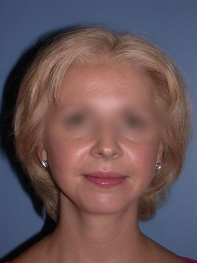 Chin Augmentation Gallery - Patient 5900638 - Image 8