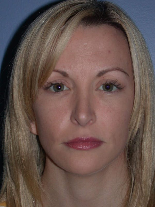 Facial Fat Grafting Gallery - Patient 5900845 - Image 2