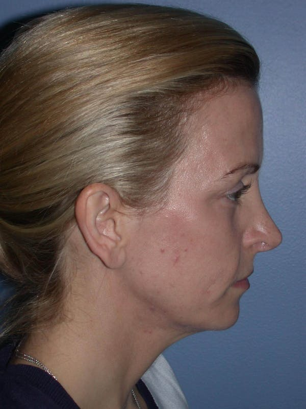 Facial Fat Grafting Gallery - Patient 5900845 - Image 3