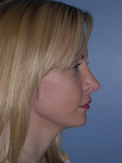 Facial Fat Grafting Gallery - Patient 5900845 - Image 4