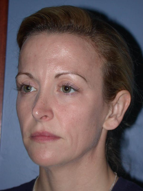 Facial Fat Grafting Gallery - Patient 5900845 - Image 5
