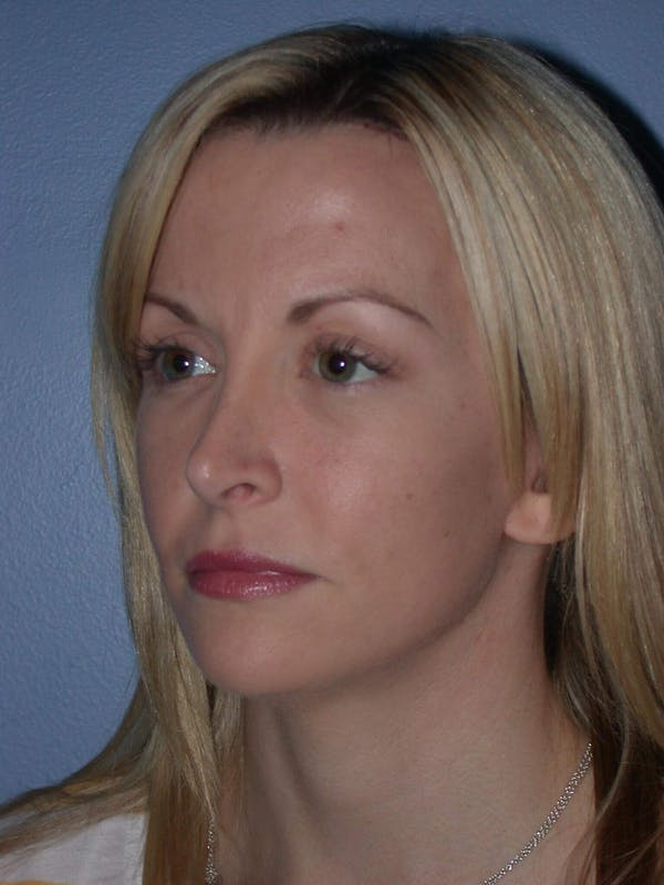 Facial Fat Grafting Gallery - Patient 5900845 - Image 6