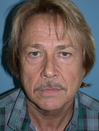 Male Facial Procedures Gallery - Patient 6096738 - Image 1