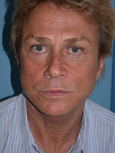 Male Facial Procedures Gallery - Patient 6096738 - Image 2