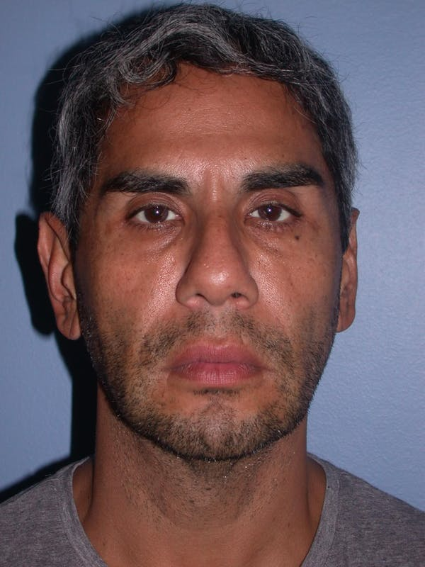 Male Facial Procedures Gallery - Patient 6096739 - Image 1