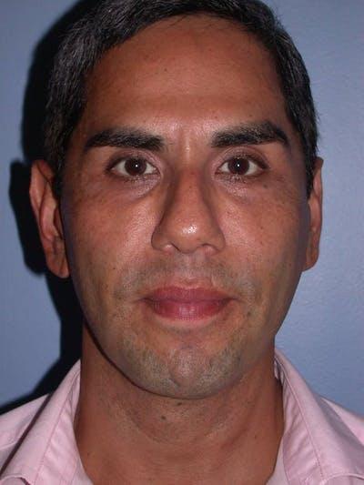 Male Facial Procedures Gallery - Patient 6096739 - Image 2
