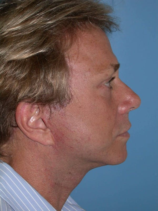 Male Facial Procedures Gallery - Patient 6096738 - Image 4