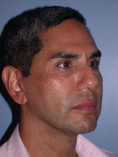 Male Facial Procedures Gallery - Patient 6096739 - Image 4