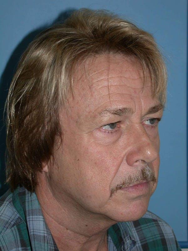 Male Facial Procedures Gallery - Patient 6096738 - Image 7