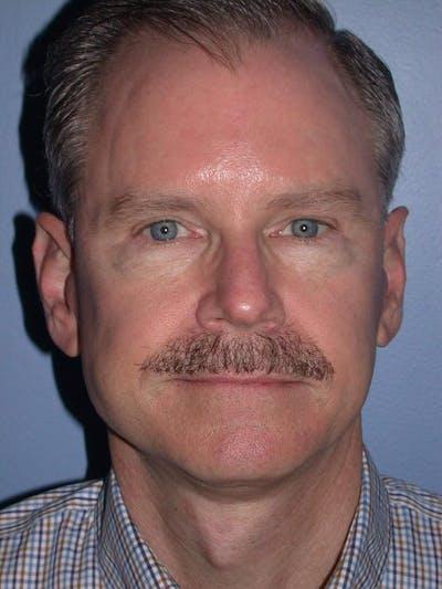 Male Facial Procedures Gallery - Patient 6096740 - Image 2