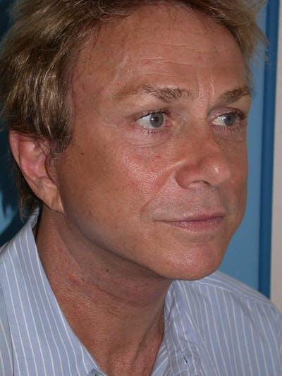 Male Facial Procedures Gallery - Patient 6096738 - Image 8
