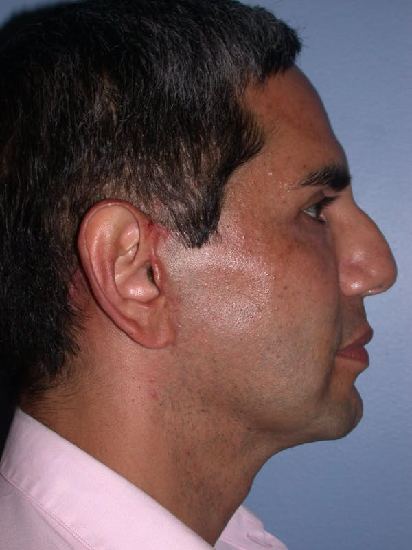 Male Facial Procedures Gallery - Patient 6096739 - Image 6