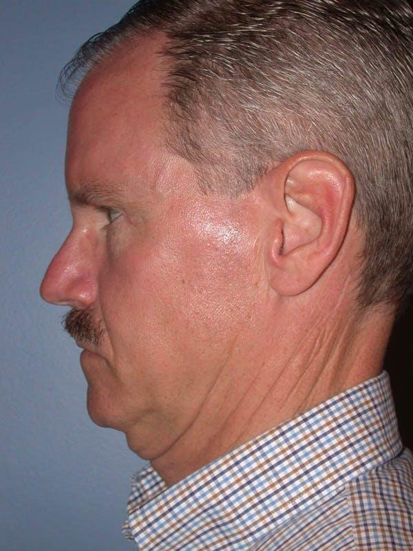 Male Facial Procedures Gallery - Patient 6096740 - Image 3