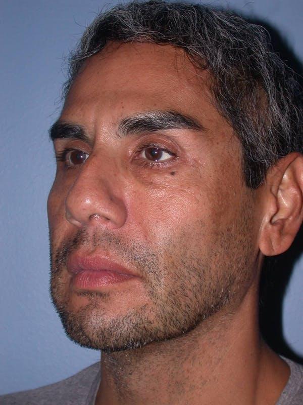 Male Facial Procedures Gallery - Patient 6096739 - Image 7