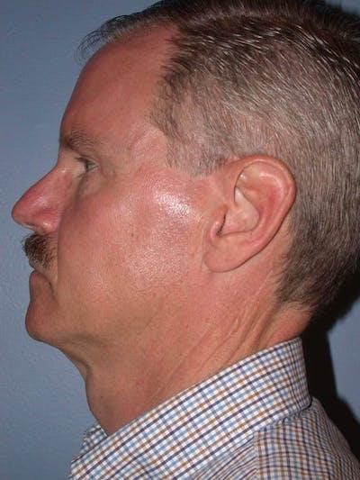 Male Facial Procedures Gallery - Patient 6096740 - Image 4