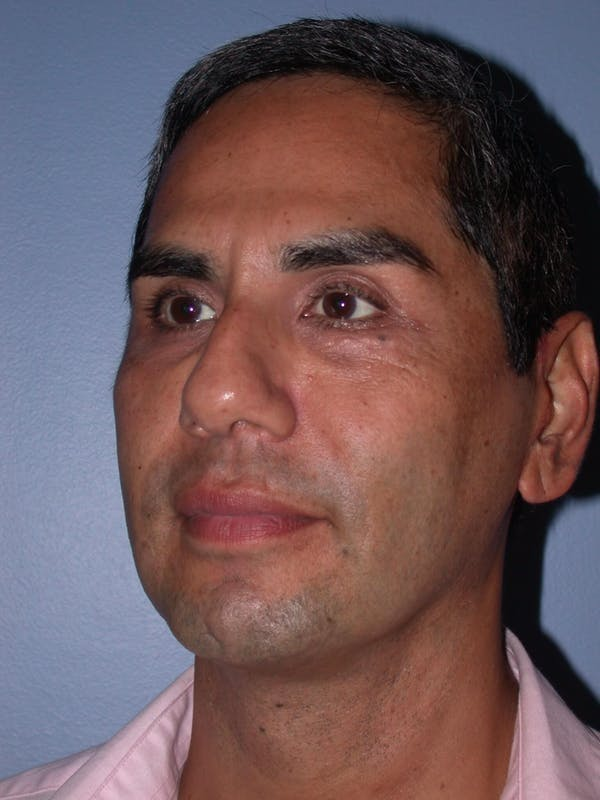 Male Facial Procedures Gallery - Patient 6096739 - Image 8