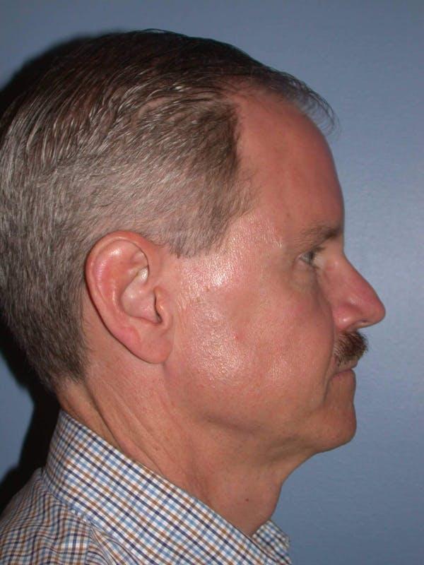 Male Facial Procedures Gallery - Patient 6096740 - Image 5