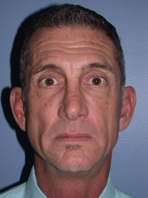Male Facial Procedures Gallery - Patient 6096741 - Image 1