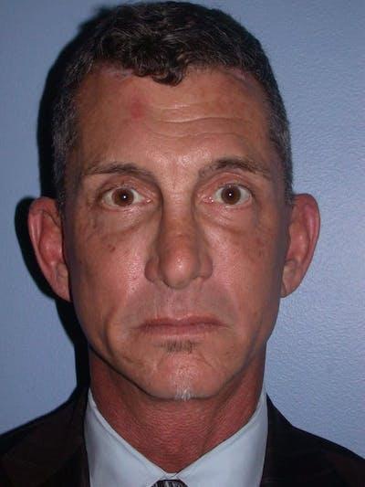 Male Facial Procedures Gallery - Patient 6096741 - Image 2