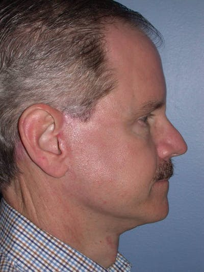Male Facial Procedures Gallery - Patient 6096740 - Image 6